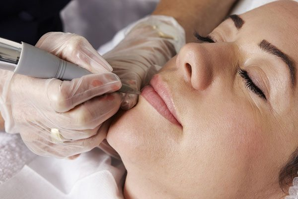 Dermaplaning: The Beauty Secret For Estheticians