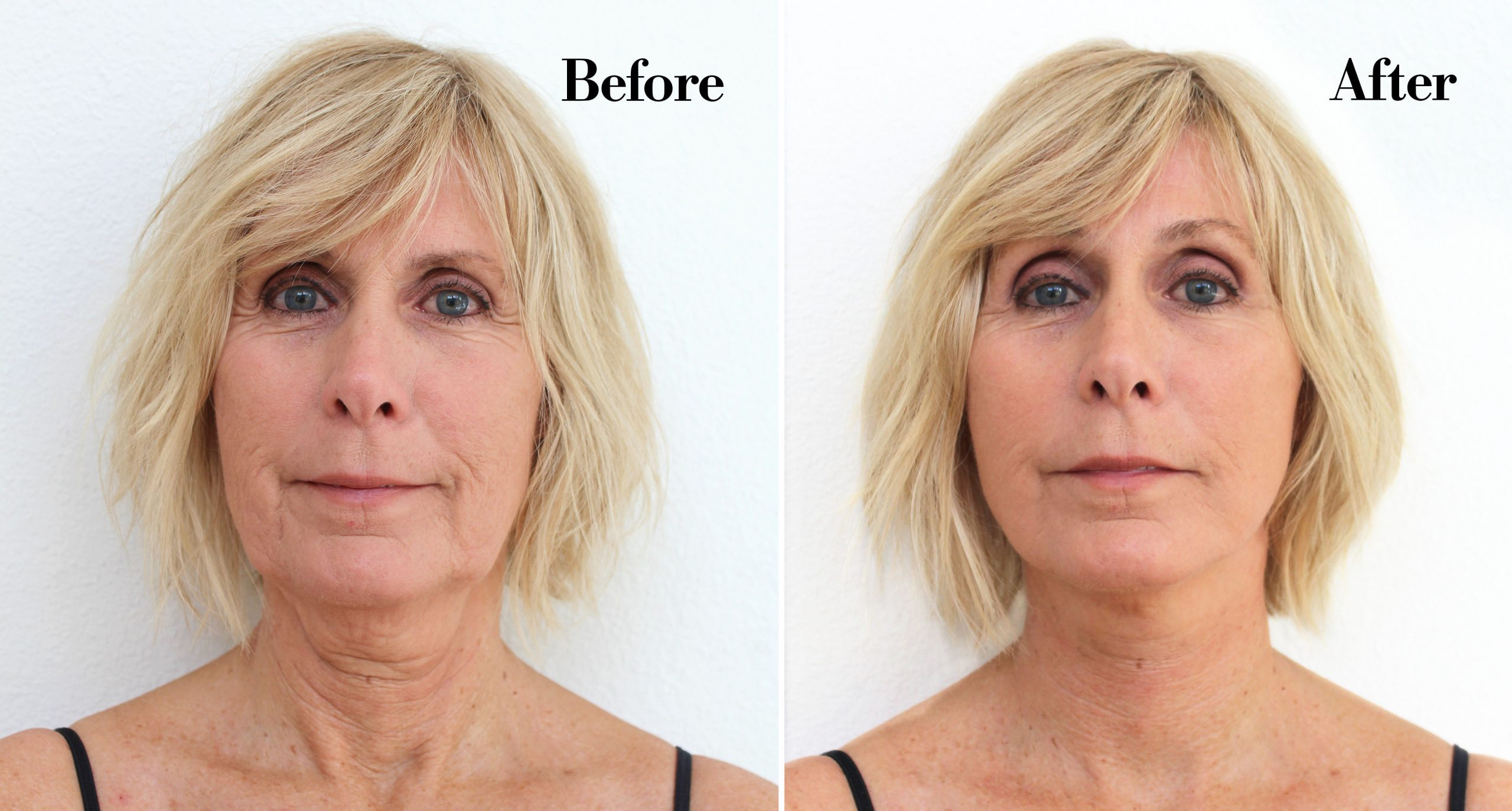 Non Surgical Face Lifts Thermage Vs Titan